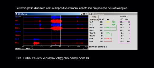 12 B ELECTRO com DIO 1 CORT