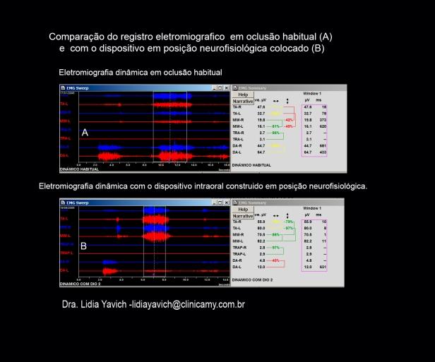 13 B electros comparativas
