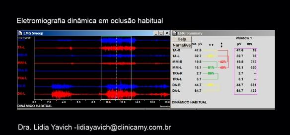 4 B ELECTRO HABITUAL 1 CORTADA