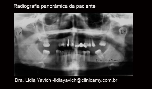 6 PANORAMICA