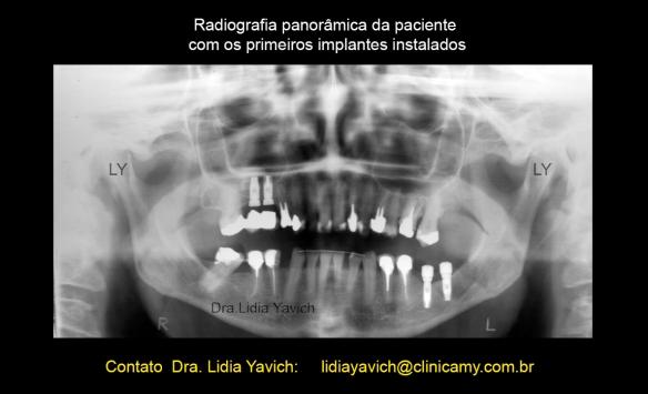 10B PANORAMICA implantes 1