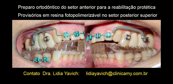 11 preparo ortodontico setor anterior