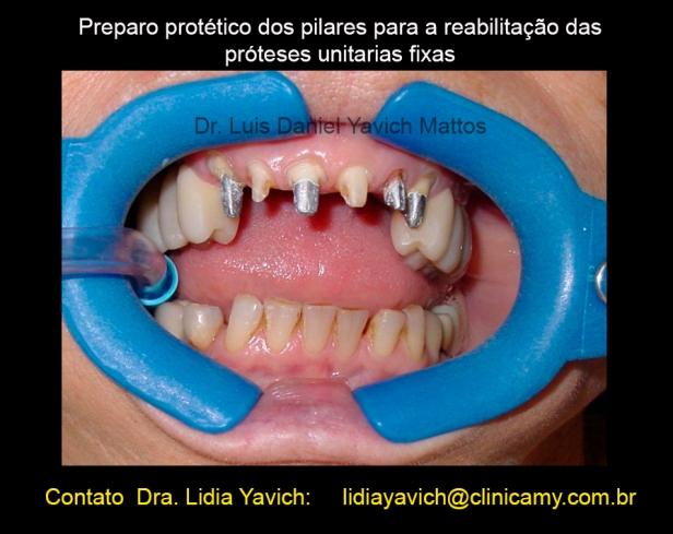 12 preparo protese-1