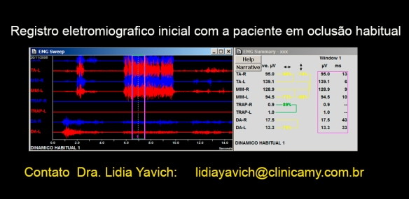 8 B eletromiografia em oc. habitual