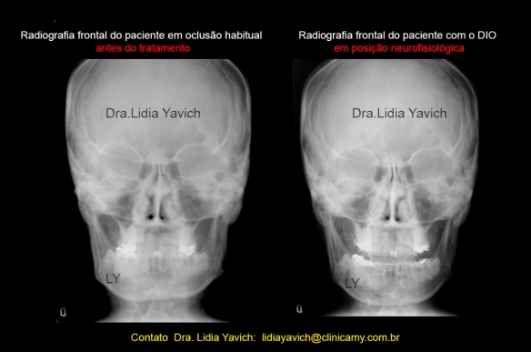 22 frontal comparativas