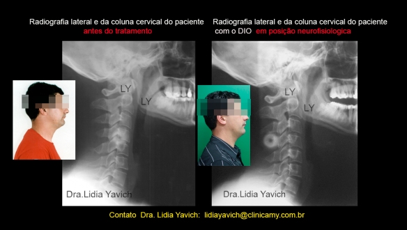24 foto LATERAL comparativas