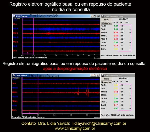 7 C ELETROMIOGRAFIA comparativas ante e apos desprogramação