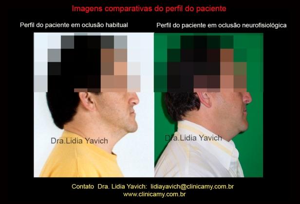 15 PERFIS COMPARATIVOS