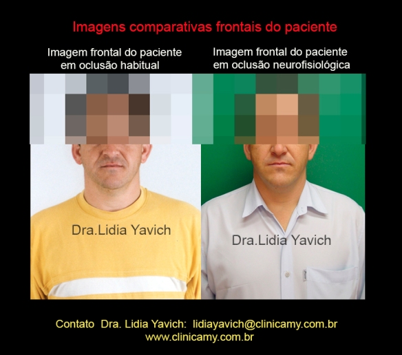 16 FRONTAL COMPARATIVOS