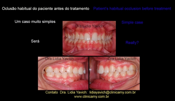 2 dentes