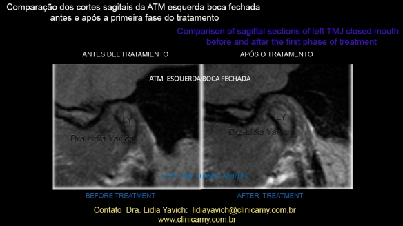 40 RNM AFTER TREATMENT