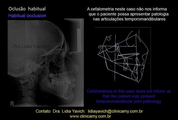 7 cefalometria