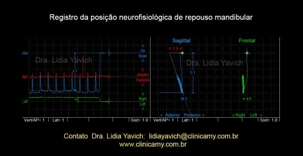13G REGISTRO NEUROFISIOLOGICO