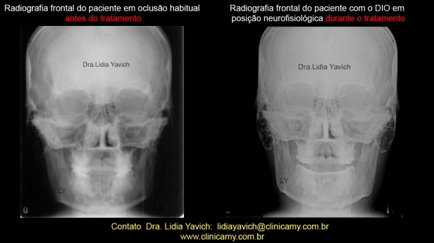 17 FRONTAIS COMPARATIVAS