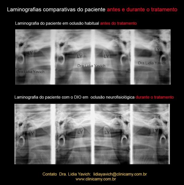 18 LAMINOGRAFIAS COMPARATIVAS