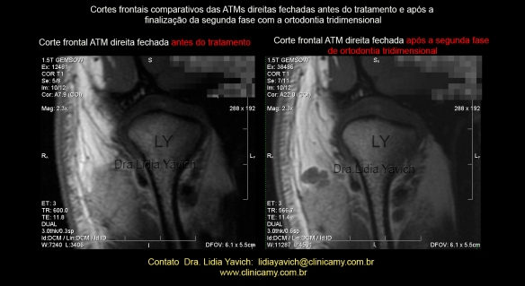 30 ress comparativa frontal dir 1