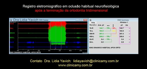 36 eletromiografia final