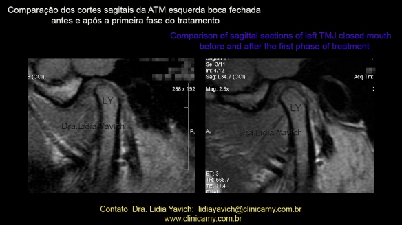 39 RNM AFTER TREATMENT 2