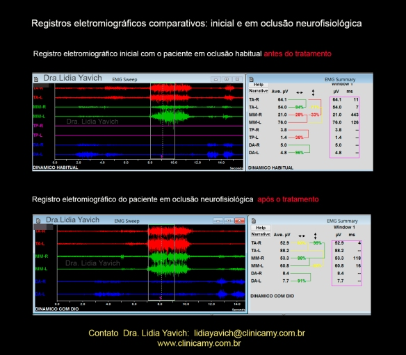 15 ELETROMIOGRAFIAS COMPARATIVAS