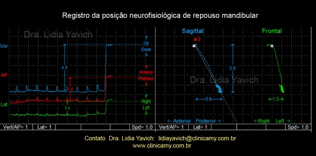 12 registro neurofisiológico