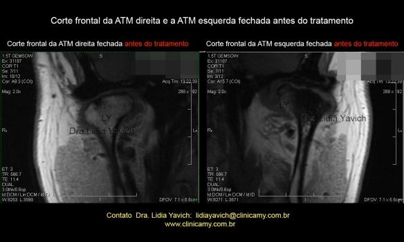 14  RNM FRONTAIS INICIAIS DIR E ESQ-Recuperado