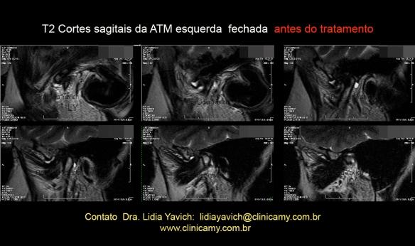 16 series ESQ boca fechada 2013 T2