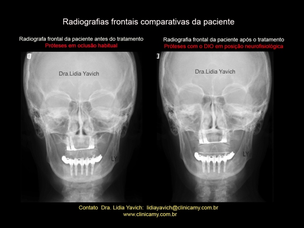 20 FRONTAIS COMPARATIVAS