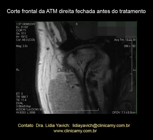 CORTE FRONTAL DA ATM DIR INICIAL ANTES DO TRATAMENTO