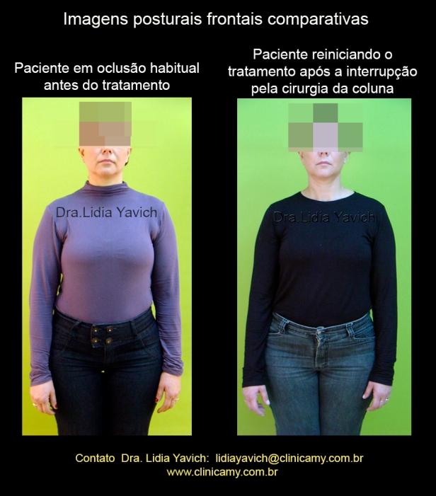 17 FOTO frontal reinicio de tratamento 1