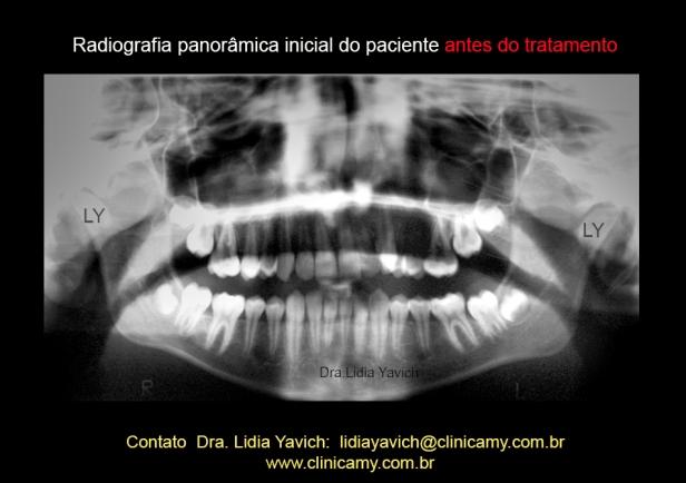 5-panoramica-inicial