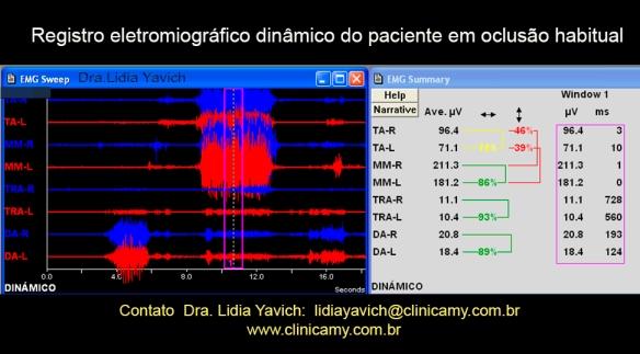10-dinamico-1