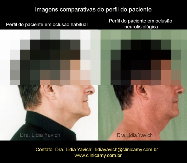 17-a-perfil-comparativos