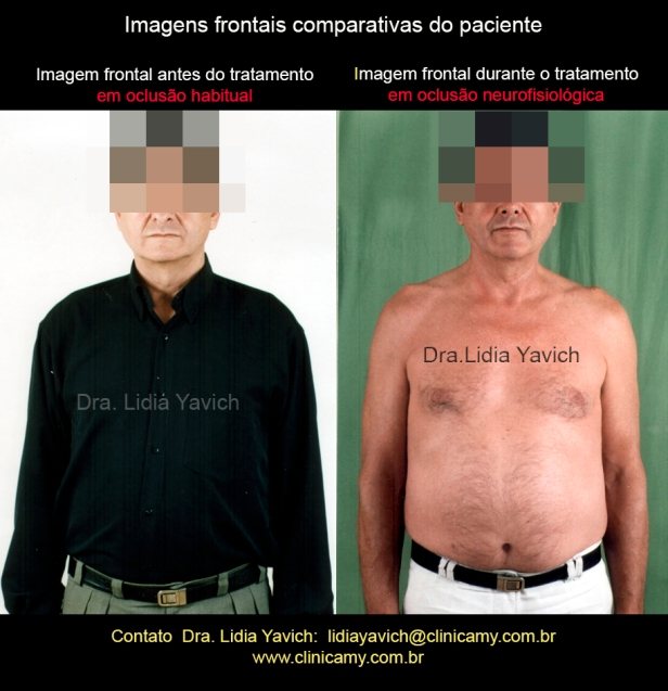 19-comparativa-frontal