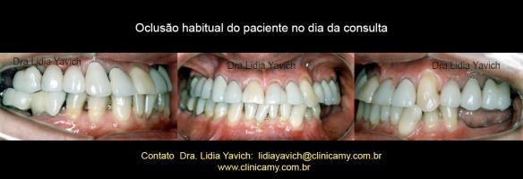 3-dentes