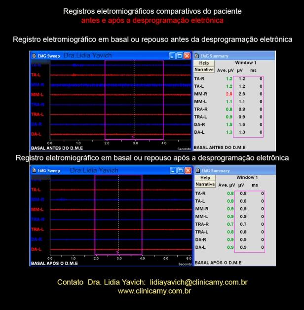 9-comparativos-emg-basal
