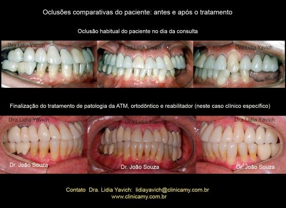 38-dentes-comparativos-finais