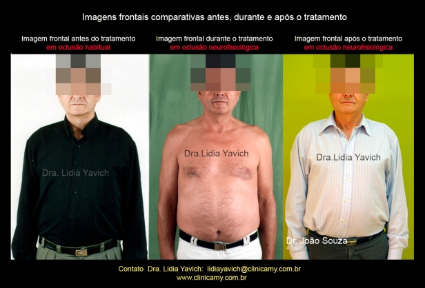 41-comparativa-frontal