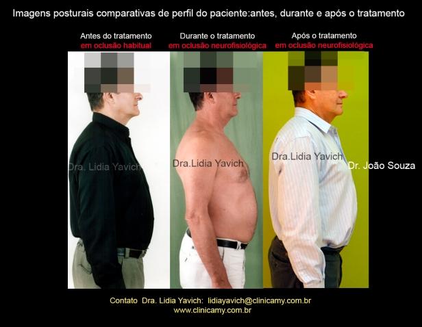 42-comparativa-perfil-1