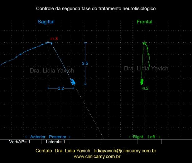 jaw-tracker-3