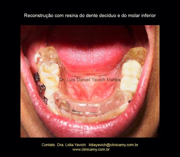 29 reconst do dente desiduo