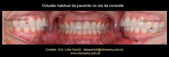 3 dentes