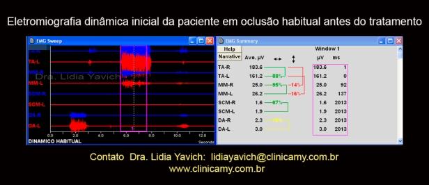 10 eletromiog dinamica inicial