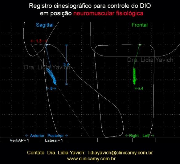22A Registro cinesiográfico para controlar o DIO em posição neurofisiológica