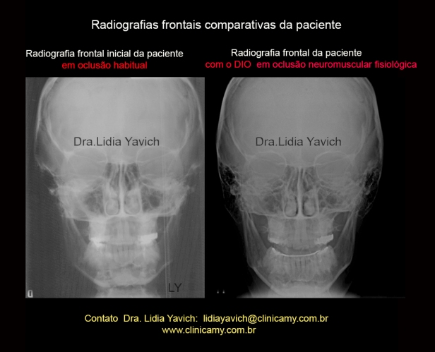 26TELEFRONTAIS COMPARATIVAS