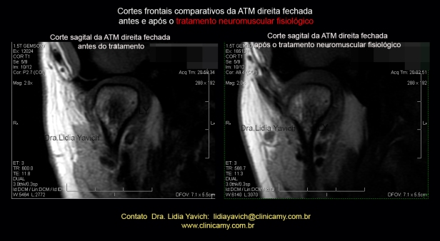 54 ress direita frontal comparativa 1