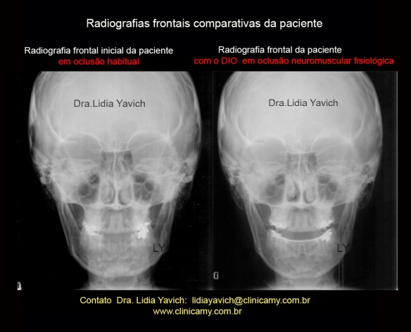 10 FRONTAIS COMPARATIVAS