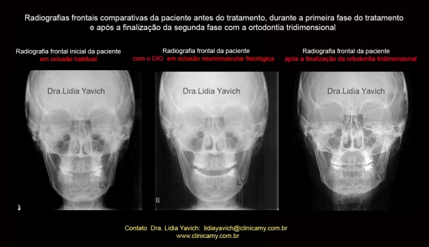 39 FRONTAIS COMPARATIVAS