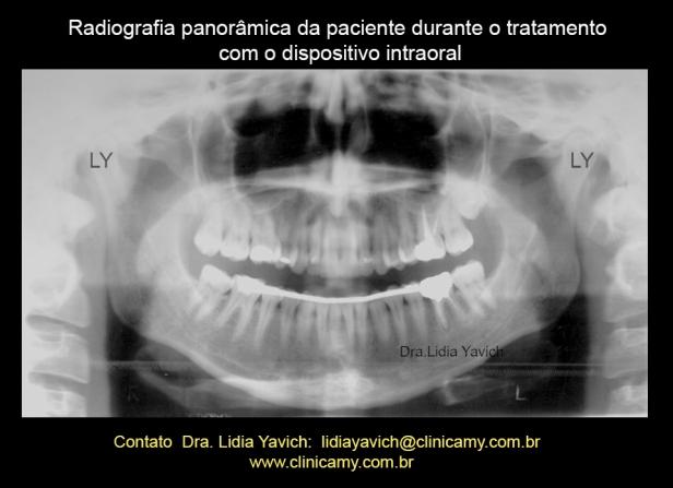 9D PANORAMICA COM ORTESE