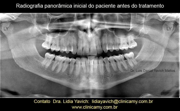 5 PANORAMICA INICIAL