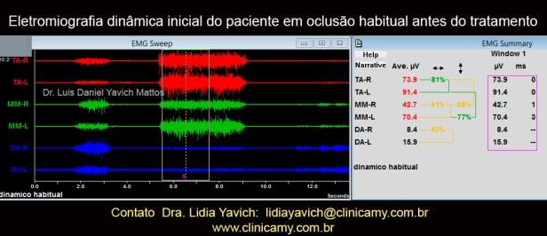 13 eletromiografia inicial